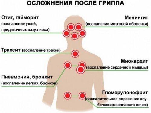 Последствия ОРВИ на дыхательную систему