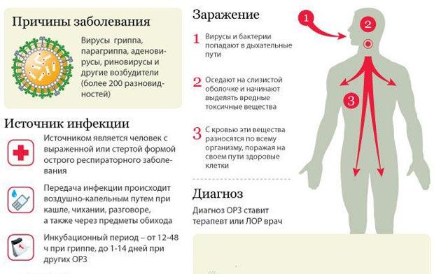 Формы заболевания гриппом