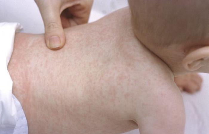 Геморрагическая сыпь при орви