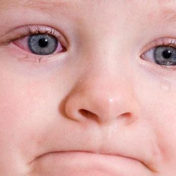 коньюктивит у ребенка