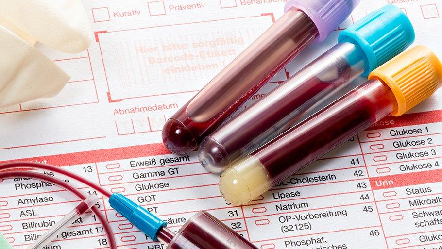 Можно ли сдавать кровь после прививки от гриппа?