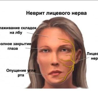 Причины, симптомы и лечение воспаления лицевого нерва